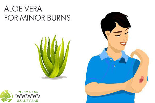 aloe-vera-for-minor-burns