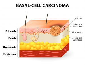 Basal-Cell-Carcinoma-Signs-and-Symptoms